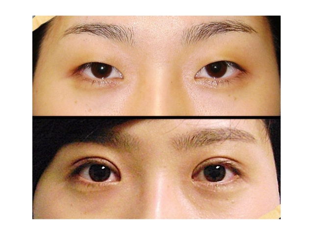 the-curious-beginnings-of-double-eyelid-surgery-in-1950s-korea-6-638